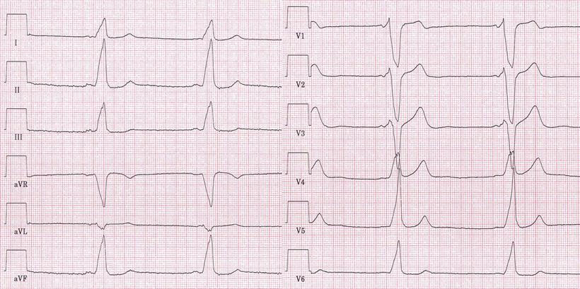 AV-Reentry-Tachykardie und ventrikuläre Präexzitation (WPW ...