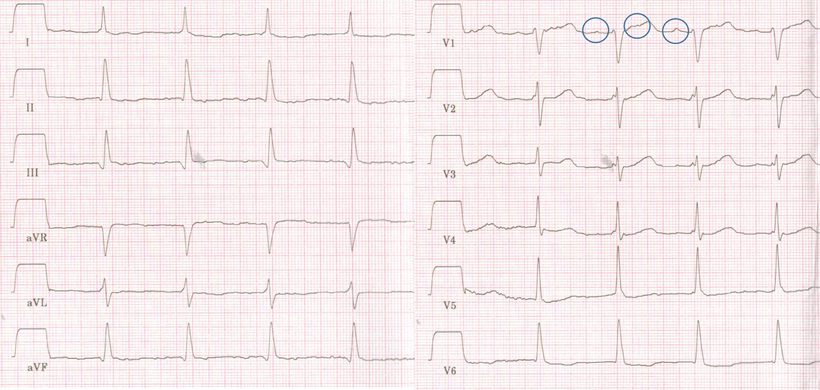 EKG Anhaltende atriale Tachykardie P Welle