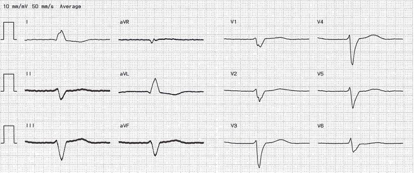 EKG Vor CRT 12 Kanal EKG