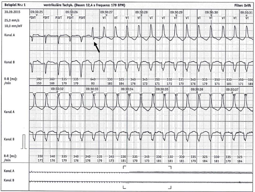 Langzeit-EKG Beginn Kammertachykardie Fusionsschlag
