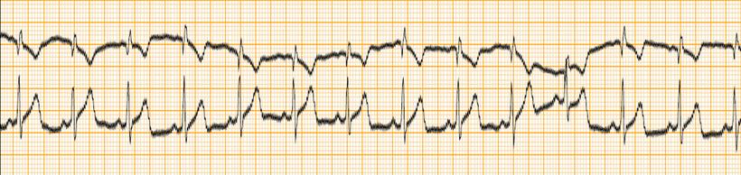 EKG Artefakt Wechselstrom