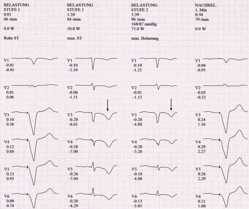 EKG Schrittmacher Belastung-EKG