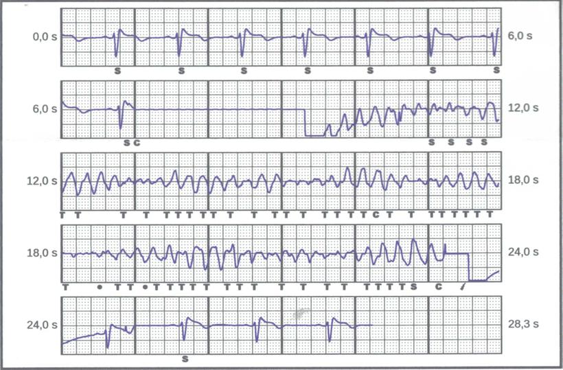 EKG tragbarer ICD Schock