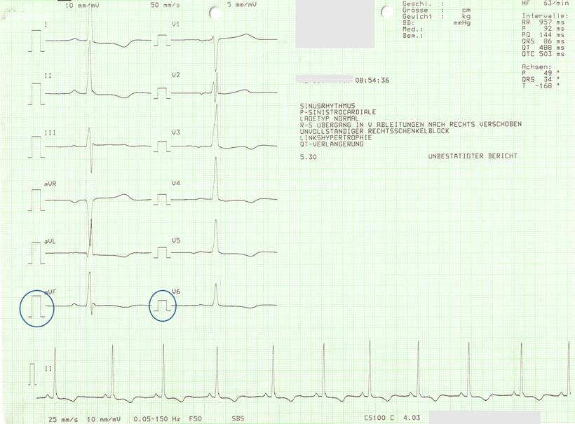 EKG linksventrikuläre Hypertrophie bei hypertropher Kardiomyopathie