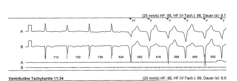 EKG Akzelerierter Idioventrikulärer Rhythmus