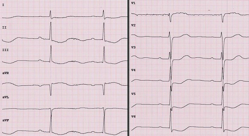 EKG Digitalis