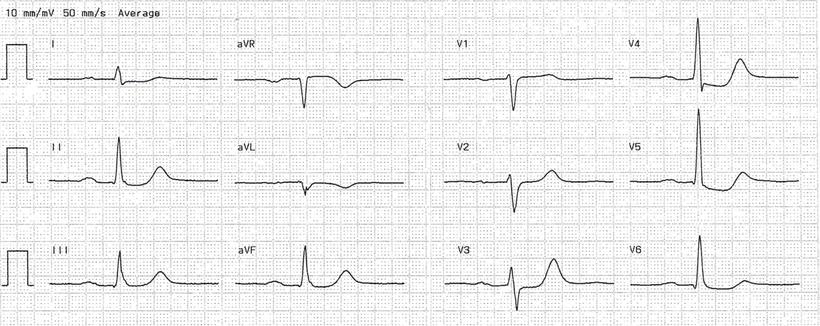 EKG  Nicht-ST-Hebungsinfarkt