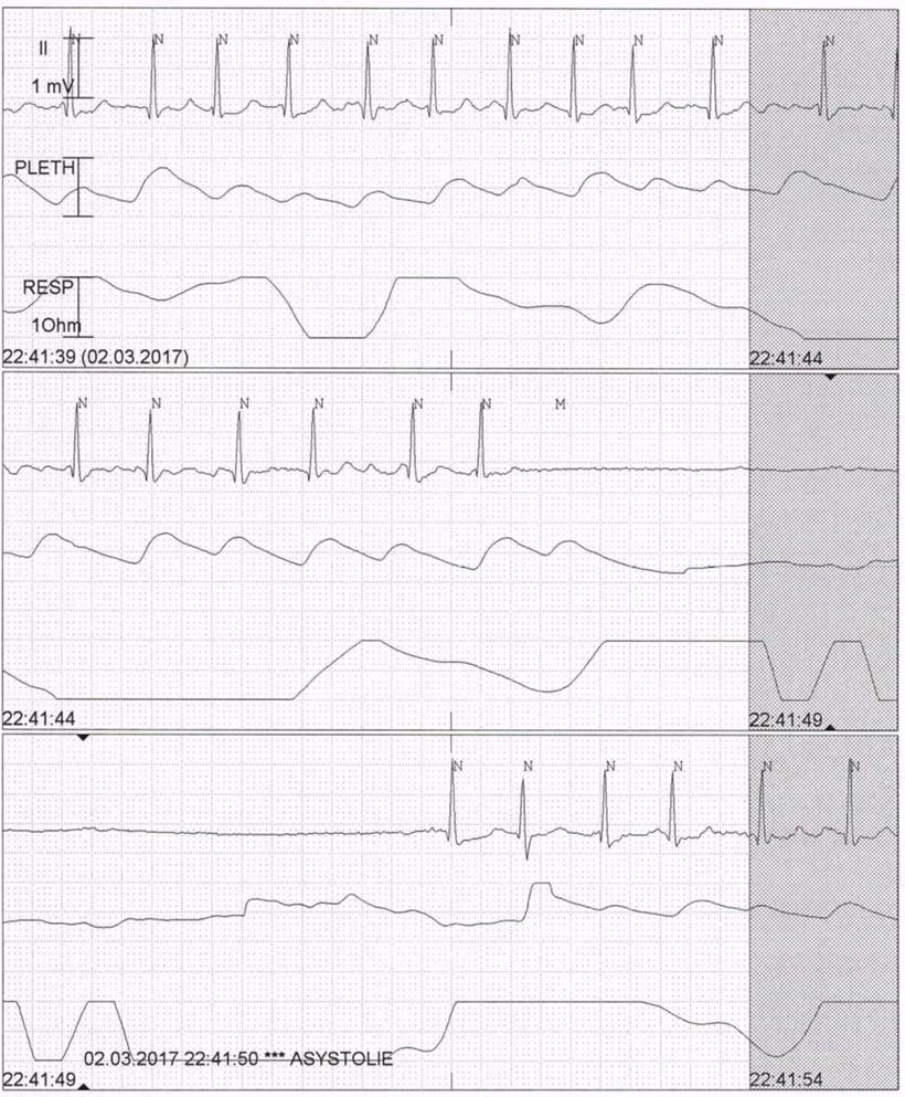 EKG Vorhofflimmern Präautomatische Pause