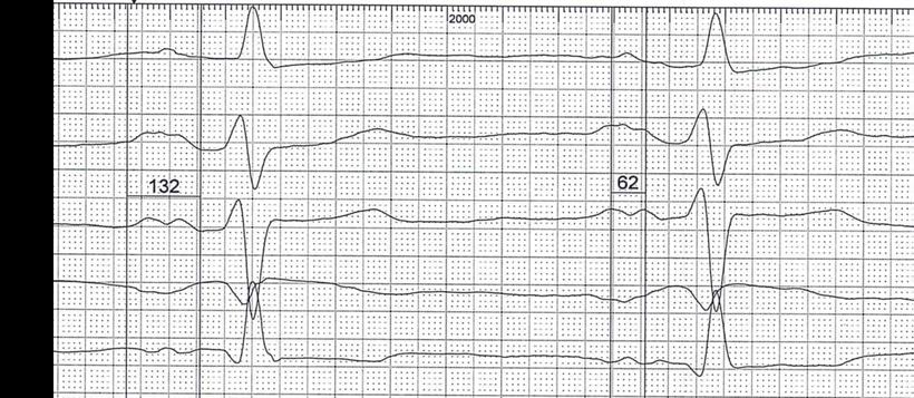 EKG atriale Leitungsstörung