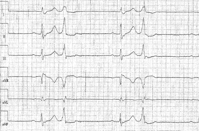 EKG SISIISIII Achse