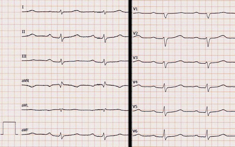 EKG Niedervoltage