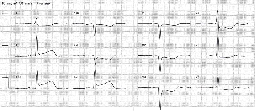 EKG Akuter Hinterwandinfarkt