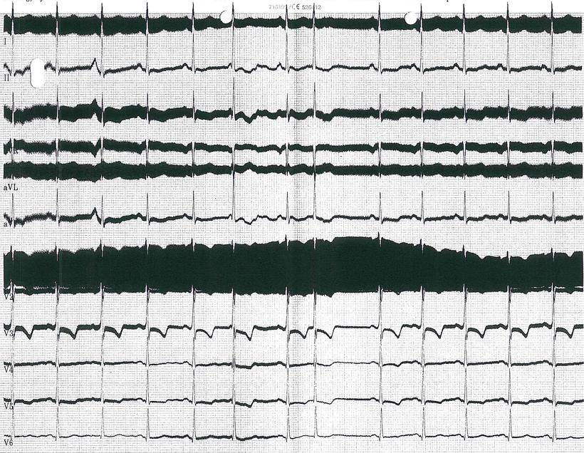EKG Tiefenhirnstimulation