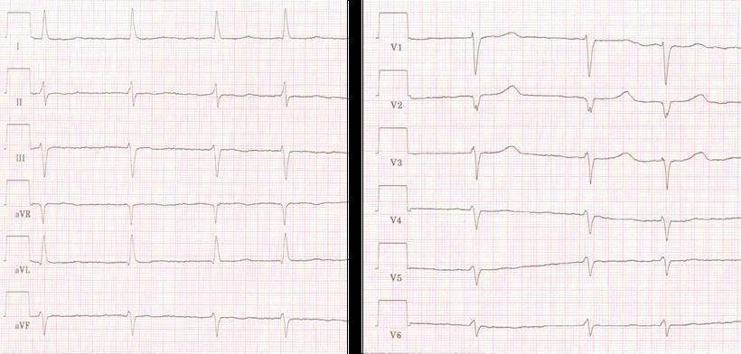 EKG Vorhofflimmern Ohne Flimmerwellen