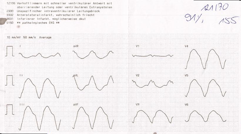 EKG Kammertachykardie Automatische Befundung