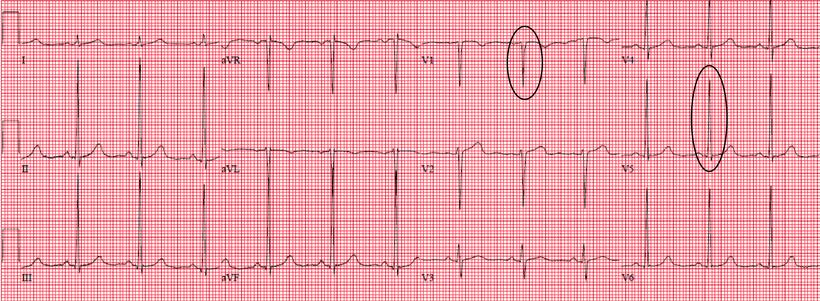 EKG asthenischem Körperbau
