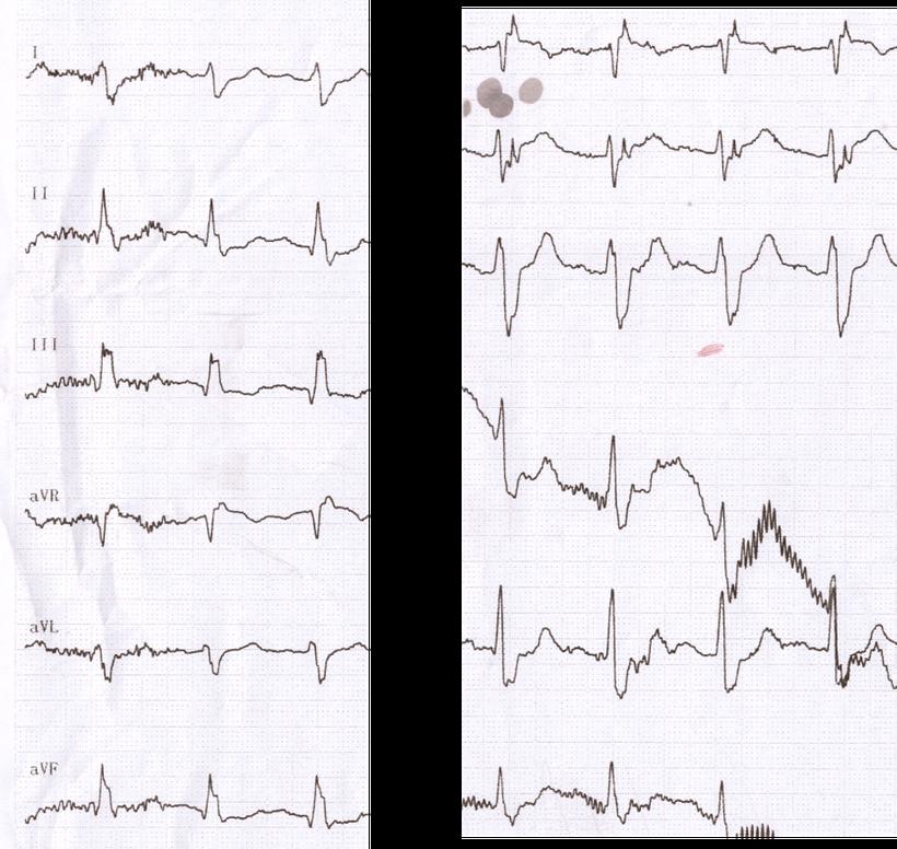 EKG Lungenembolie