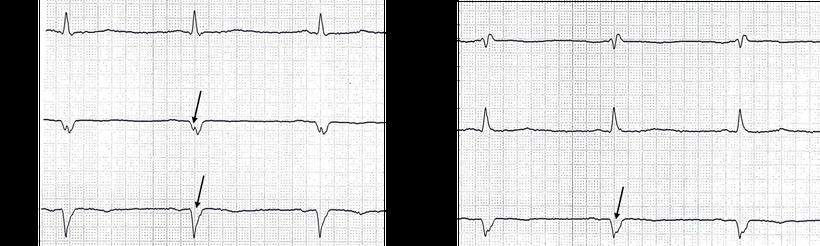 EKG Pathologische Q-Zacken nach einem abgelaufenen Hinterwandinfarkt