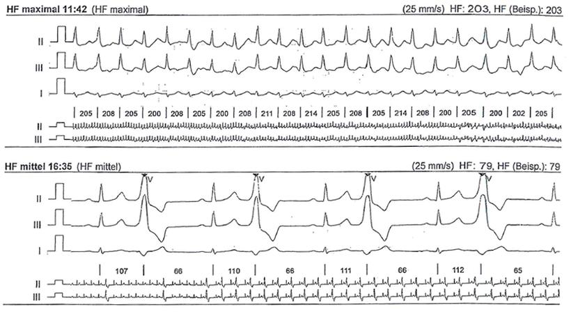 Langzeit EKG VES Bigeminus