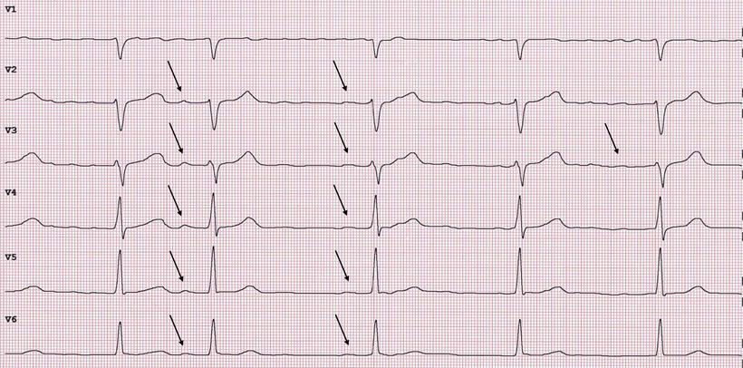 EKG Feines Vorhofflimmern