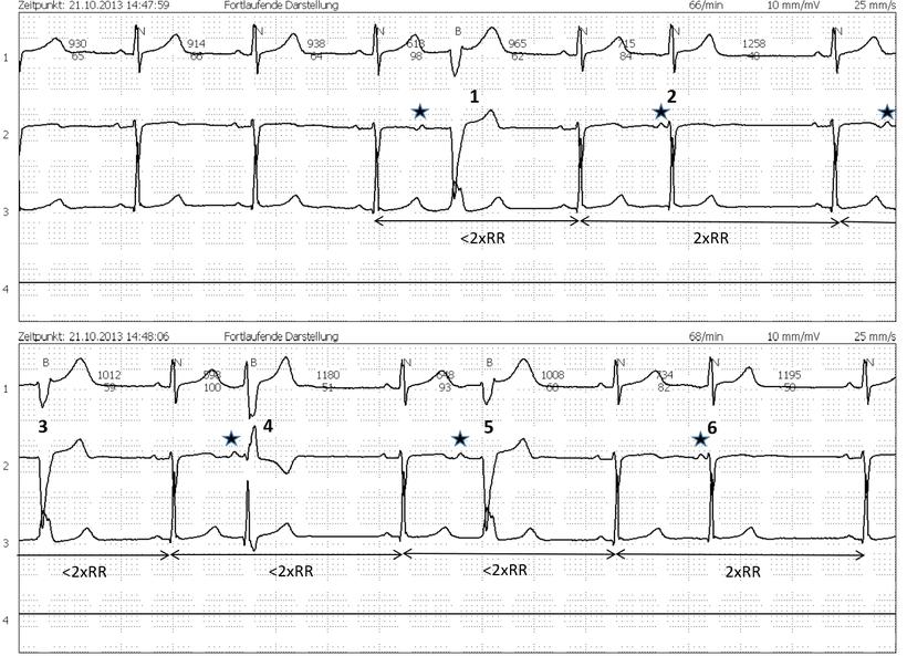 Langzeit EKG Atriale Extrasystolen RSB LSB