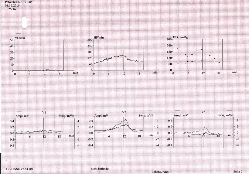 Belastung-EKG Arrhythmien