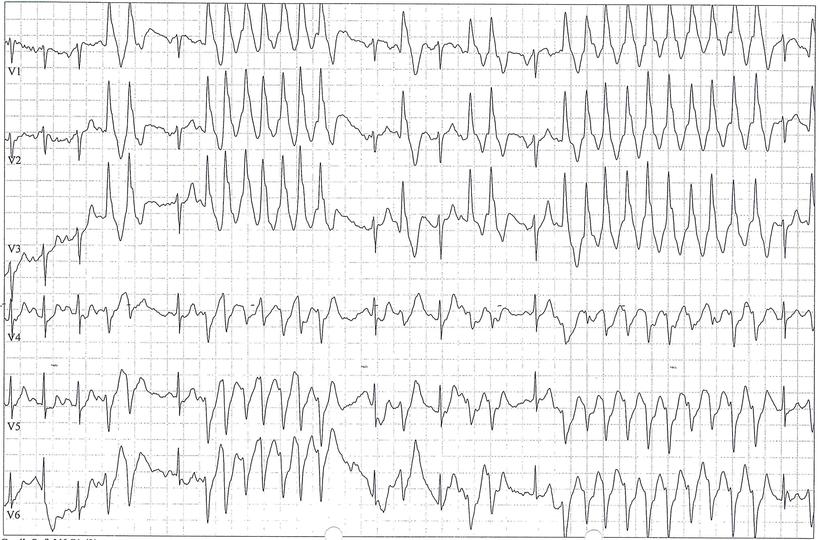EKG ILVT Idiopathische Linksventrikuläre Tachykarde RSB