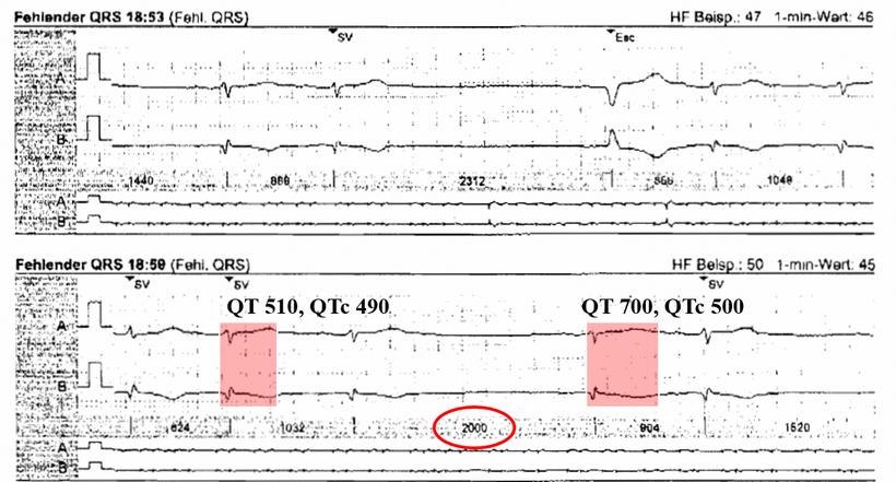 EKG Exzessive QT Verlängerung