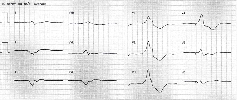 EKG Bipolare Linksventrikuläre Stimulation