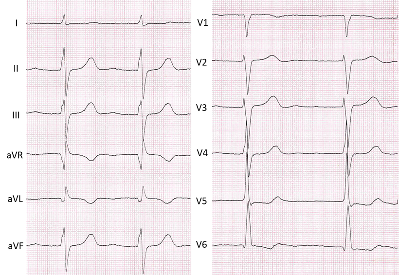 EKG linksventrikulärer Hypertophie bei arterieller Hypertonie