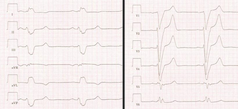 EKG DCM dilatative Kardiomyopathie