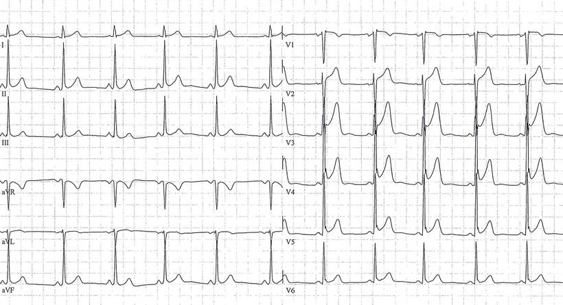 EKG Frühe Repolarisation Early Repolarization ERP
