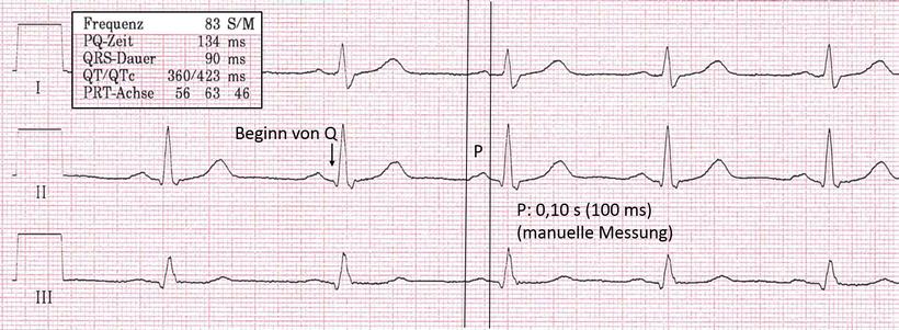 EKG P-Welle
