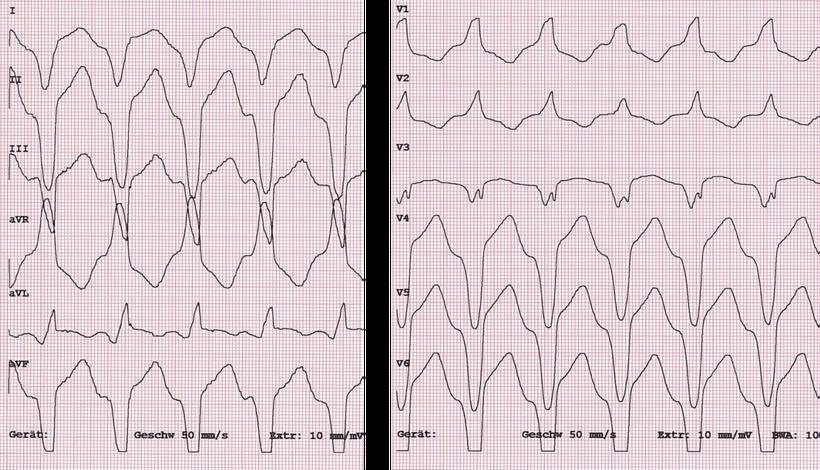 EKG HCM hypertrophe Kardiomyopathie Anhaltende Kammertachykardie