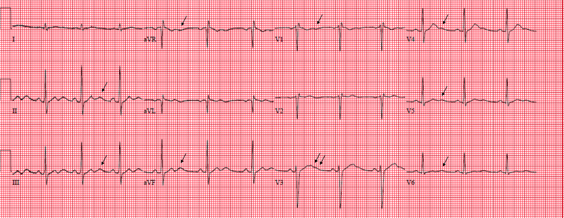 EKG U-Welle ausgeprägt
