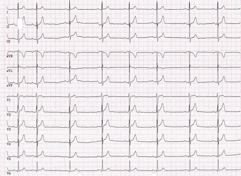EKG Sinusbradykardie