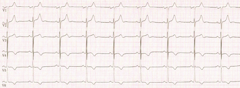 EKG Linksventrikuläres Strain-Muster