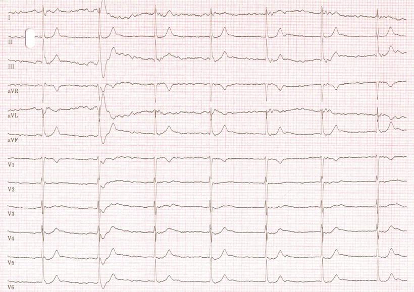EKG Junktionaler Ersatzrhythmus AV Block III