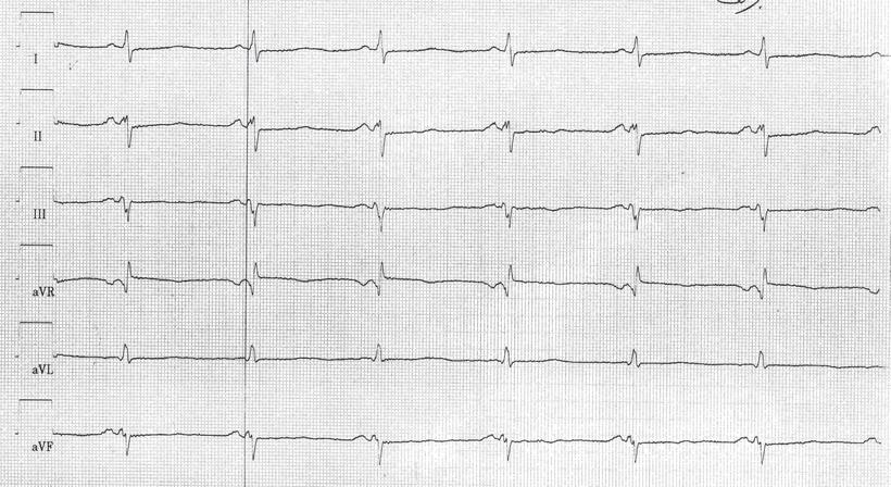 EKG Verkürztes PQ-Intervall Lown-Ganong-Levine-Syndrom.