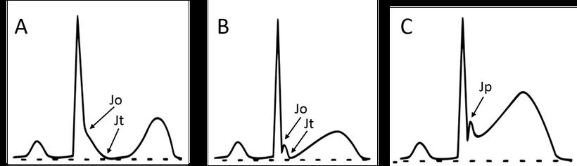 EKG J-Welle