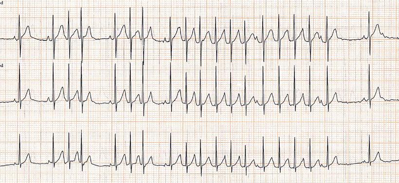 EKG Nicht-anhaltende atriale Tachykardien