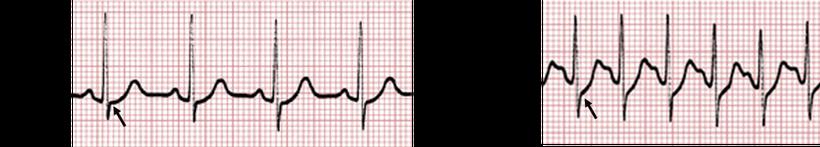 EKG Belastung Aszendierende ST-Strecken
