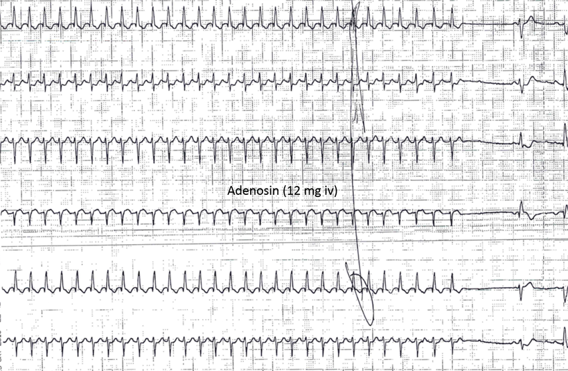 EKG AVNRT AV Knoten Reentry Tachykardie Adenosin