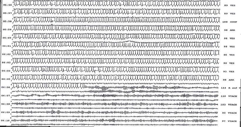 Langzeit EKG Plötzlicher Herztod Kammerflimmern