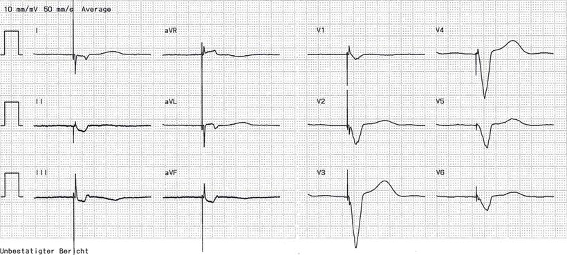 EKG CRT Biventrikuläre Stimulation