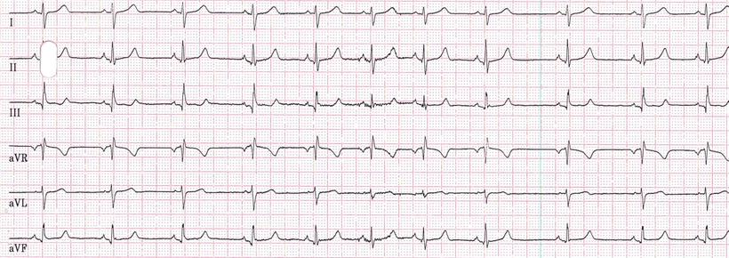EKG Respiratorische Sinusarrhythmie