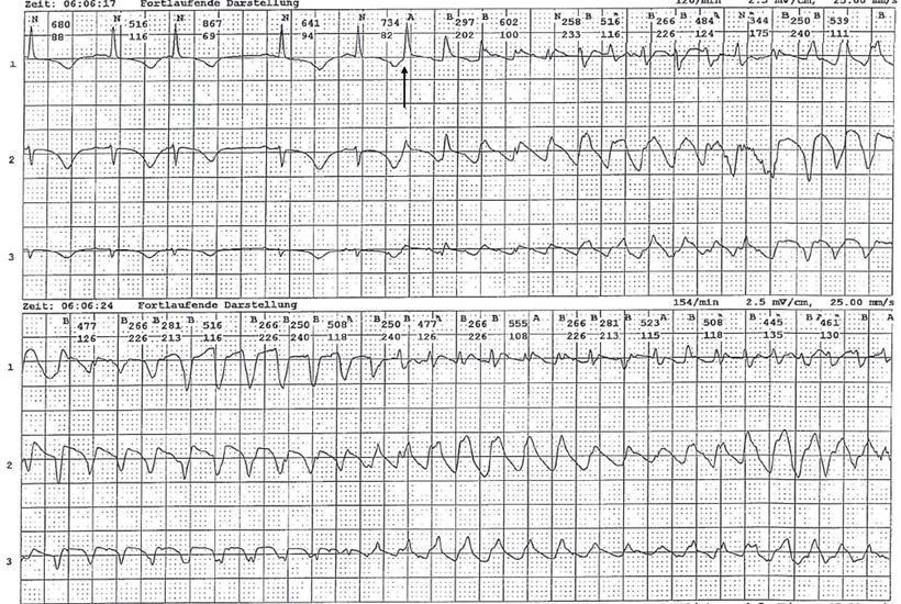 Langzeit-EKG Kammerflimmern