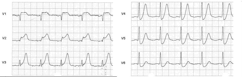 EKG Akuter Vorderwandinfarkt im Frühstadium Erstickungs-T