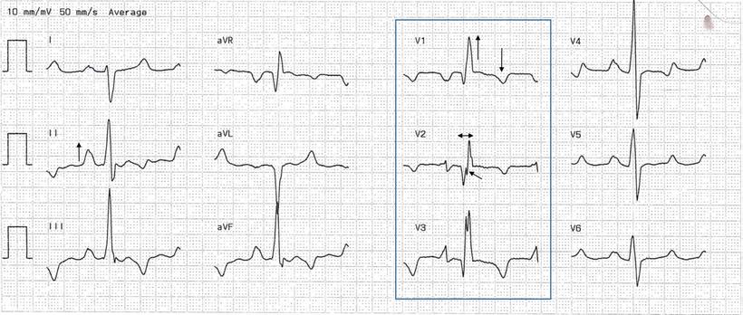 EKG persistierender Ductus arteriosus Botalli RV Hypertrophie