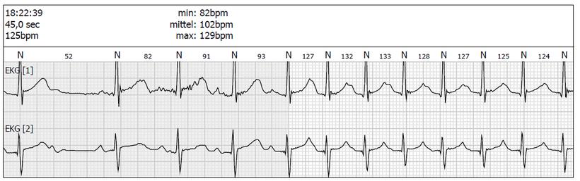 Langzeit EKG Atriale Tachykardie